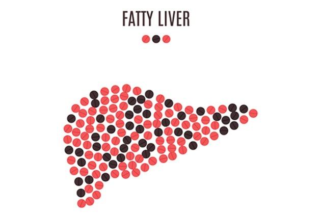 Non-alcoholic Fatty