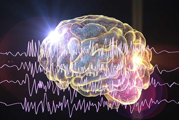 Epileptic Seizures